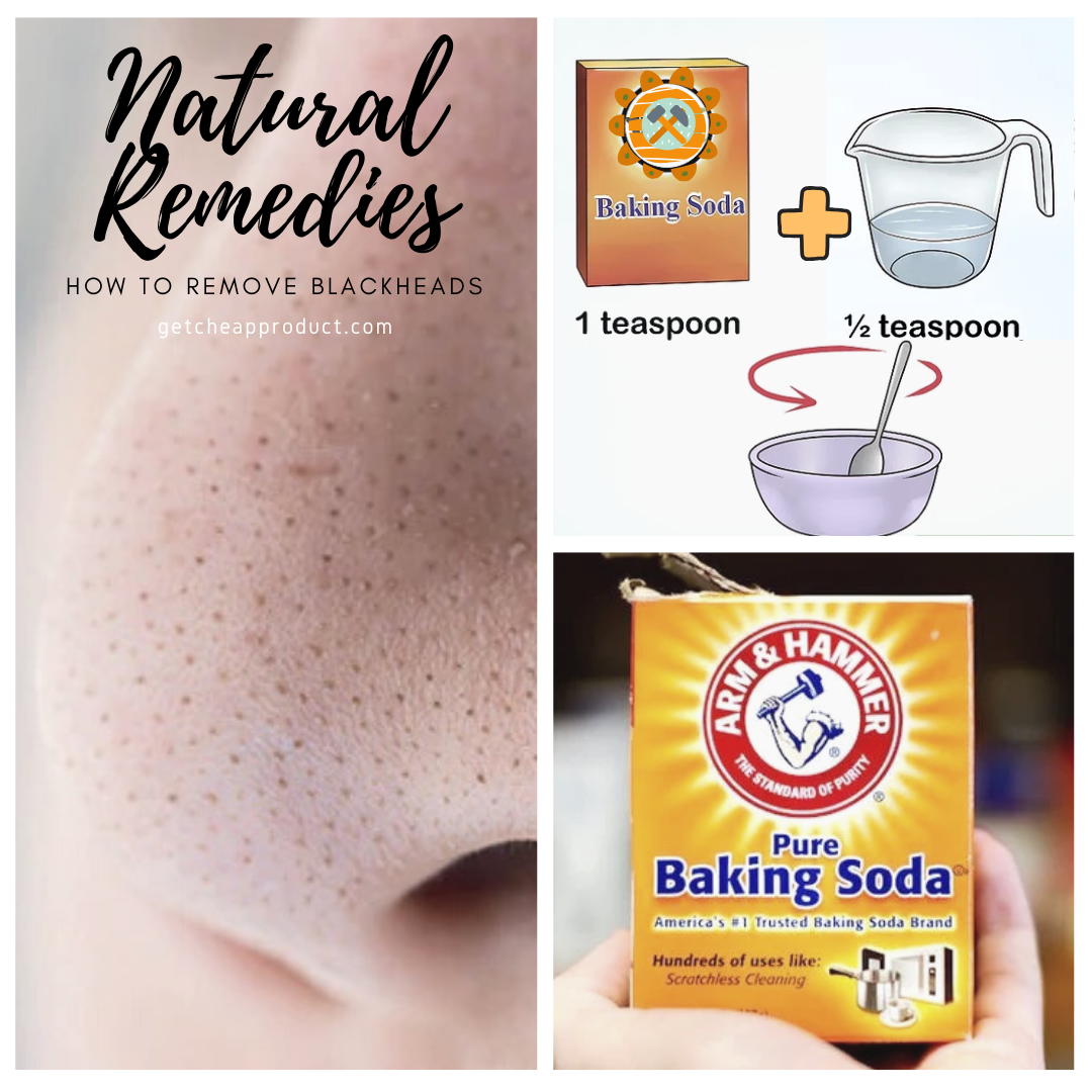 How to remove blackheads with baking soda